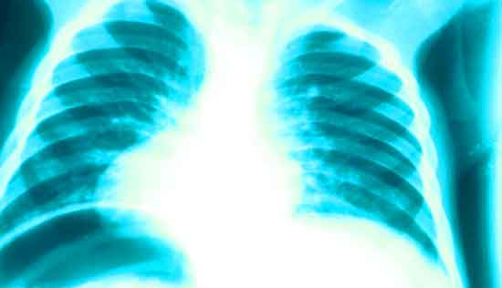 x-ray of bronchitis